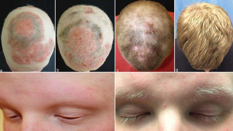 Las vitaminas dopel el hertz para los cabellos y las uñas la instrucción
