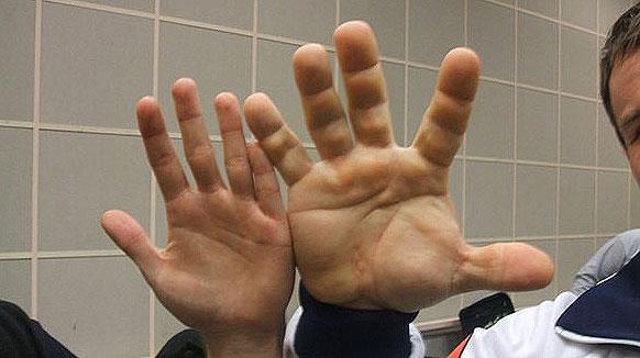 dedos increíble