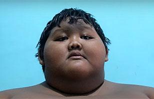 Conoce a Arya Permana, el niño más obeso del mundo: Tiene 10 años y pesa 192 kilos