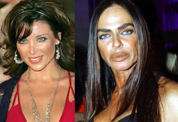 Peores cirugías famosos