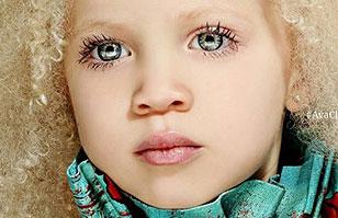 Modelo de 8 años es furor en Instagram: ¿La razón? Es albina de raza negra