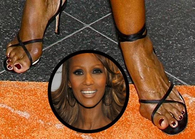 Los estragos de años de pasarela en los pies de esta bella mujer, ¿eligió mal sus zapatos?