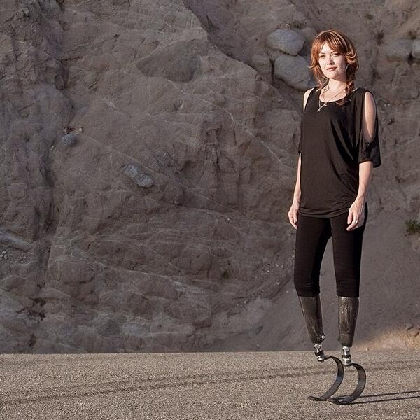 Instagram Amy Purdy
