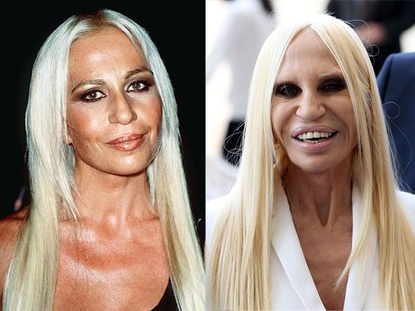 Celebrity News 10 Celebrity Plastic Surgeries That