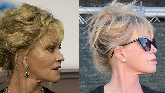 melanie griffith antes y despues cirugias
