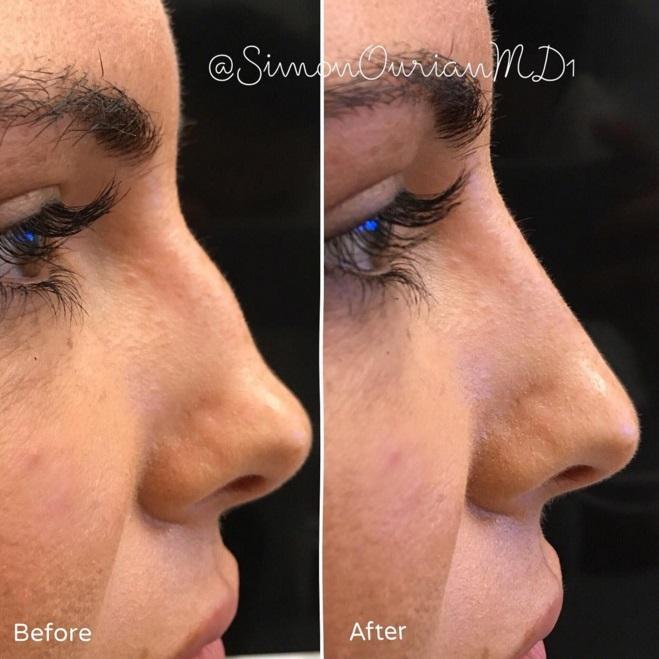 Fotos de nariz operada antes y despues de adelgazar