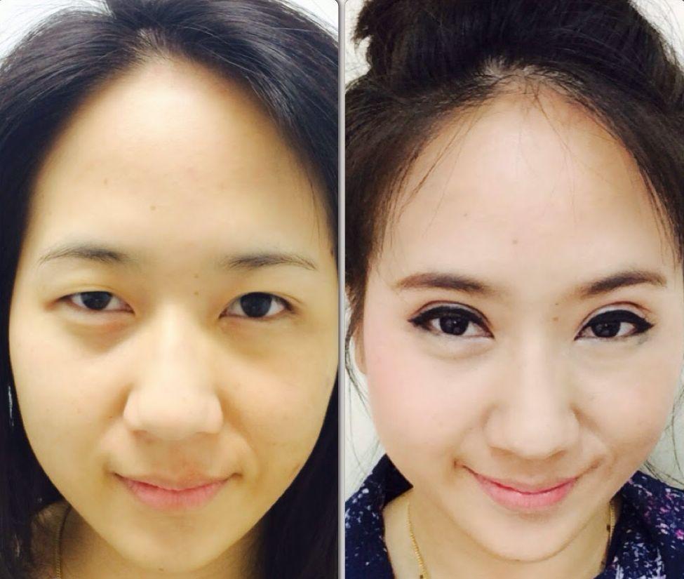 adelgazar la cara cirugia de parpados caidos