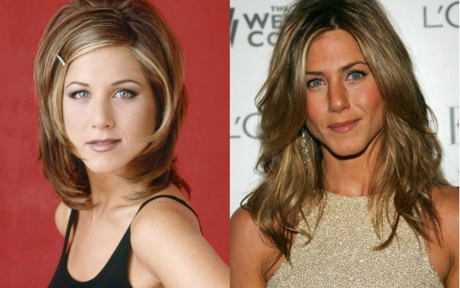 bichectomia-jennifer-aniston-antes-y-despues
