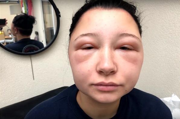 mujer desfigurada por alergia al tinte 3