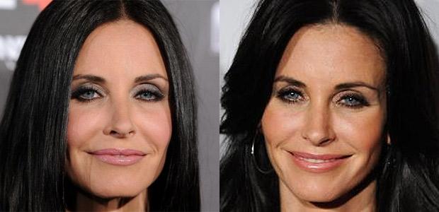 Famosas Botox