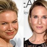 Renee Zellweger sorprende con impactante cambio en su rostro tras cirugía