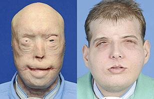 Muestran los impactantes resultados del trasplante de cara más completo de la historia