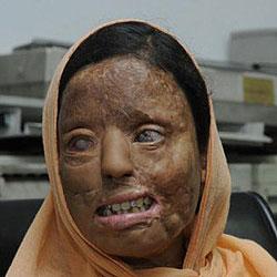 Mujer Quemada India