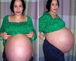 Mujer 11 bebés