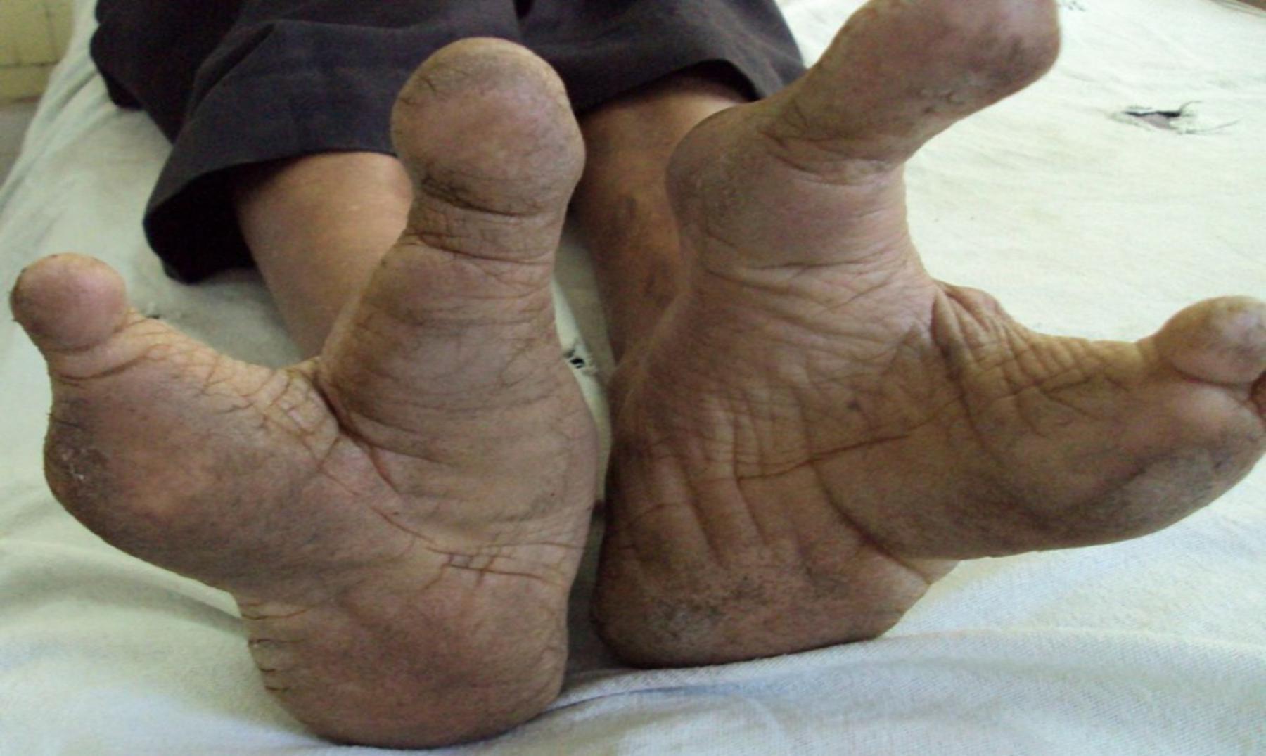 dedos de los pies grupo de tres
