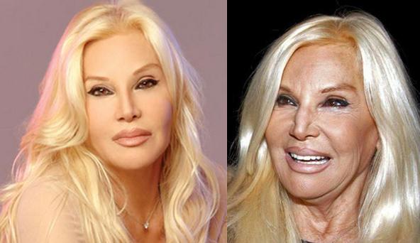 famosas argentinas con exceso de photoshop impactantes