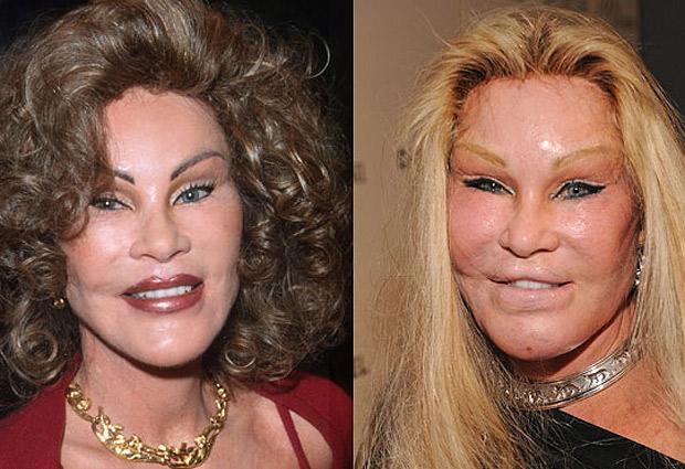 las peores fotos de los famosos: