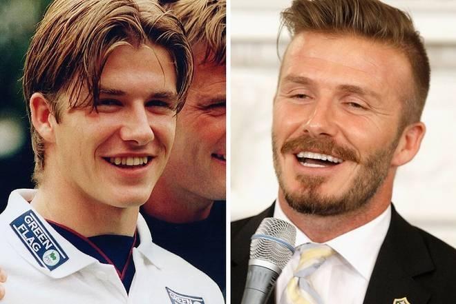 Futbolistas antes y después de volverse adictos a las cirugías ...
