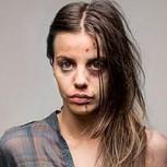 Impactantes fotos: Cómo eres antes y después de las drogas