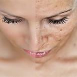 ¿Cómo tratar los melasmas o máscara del embarazo? 4 efectivos tratamientos
