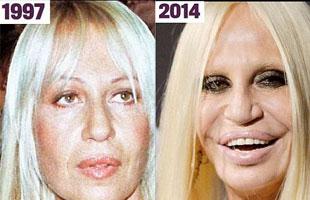 As se deterior con las cirug as el rostro de donatella for Biografia de donatella versace