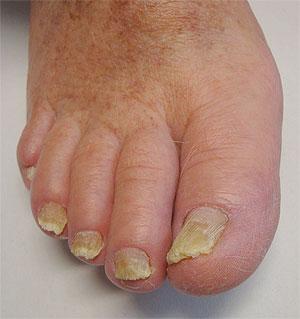 Cuanto untar las uñas por el yodo al hongo
