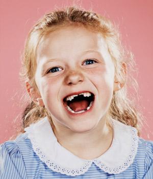 Caen dientes